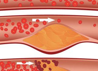 ما هي علاقة التغذية بتصلب الشرايين؟